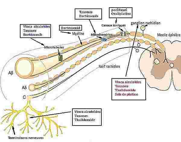neuropathie